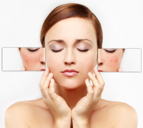 skin expert cleyo beauty professional