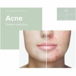 Fysieke opleiding Acne cleyo beauty professional