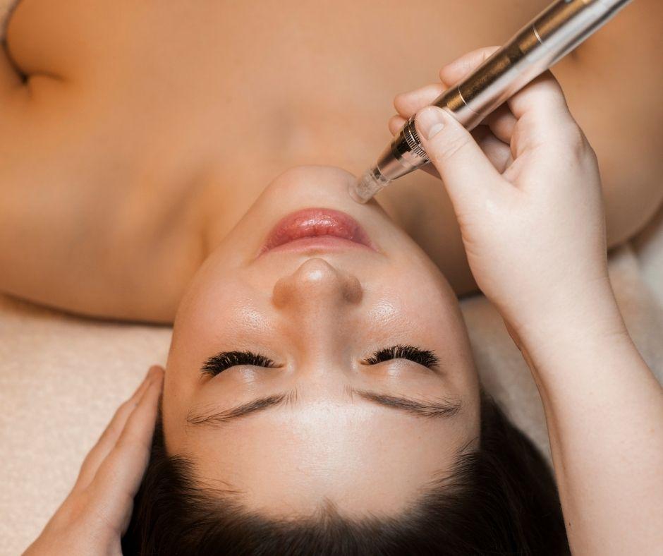 Microneedling cleyo beauty professional