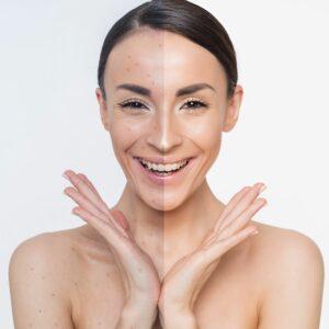 acne behandeling cleyo beauty professional