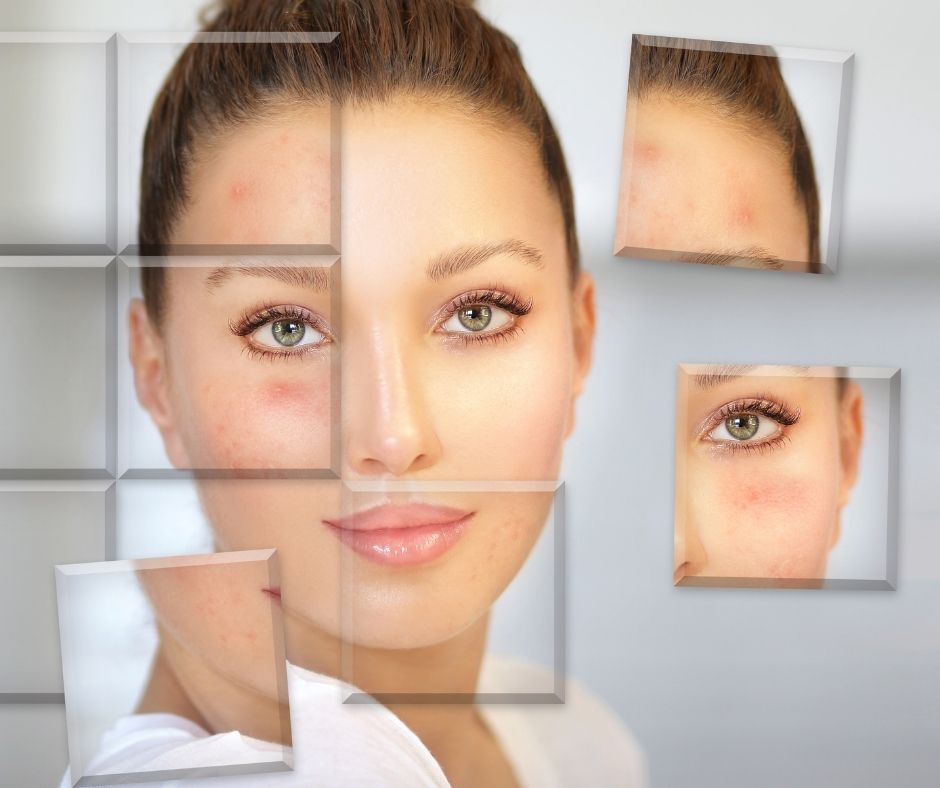 huidtypen microdermabrasie cleyo beauty professional