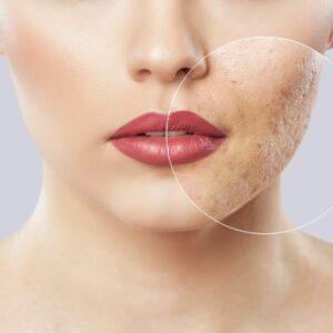 acne opleiding cleyo beauty professional
